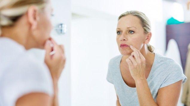 Eingerissene Mundwinkel Was Sind Die Ursachen Und Was Hilft Onmeda De Haarentfernung Gesicht Akne Gesicht Ubungen