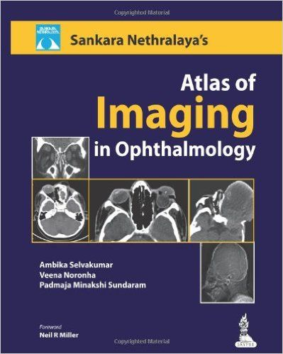 Sankara Nethralaya Atlas of Imaging in Ophthalmology PDF
