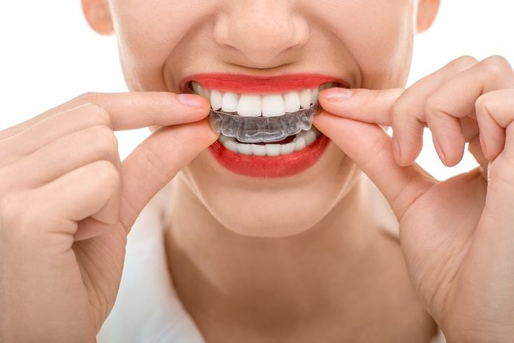 Check Top 6 Benefits When You Are Thinking About Invisible Braces    #invisalignbraces  #invisalignBracesSydney