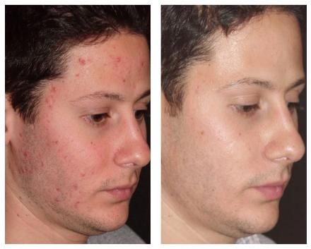 We have to be careful about skin care  #acne #acnespots #skin #health #beauty #trend #fashion #skincare #healthcare