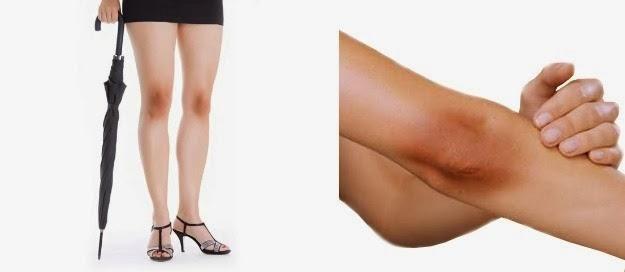 Putihkan Area Siku dan Lutut yang Hitam dengan Bahan Alami Ampuh