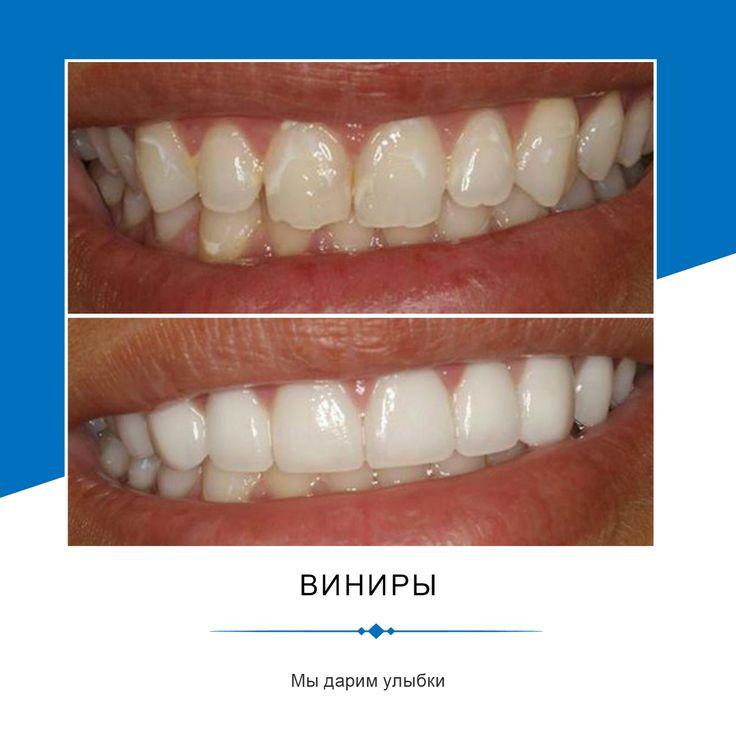КАК УХАЖИВАТЬ ЗА ВИНИРАМИ?  Зубы с винирами необходимо чистить дважды в день с помощью зубной щетки и зубной нити, поскольку скопление зубного налета в незакрытых от винира частях зубов может вызвать кариес.  Виниры не выдерживают больших нагрузок, поэтому не стоит грызть такими зубами орехи, семечки, ногти и другие предметы — это может привести к поломке пластинки.  Виниры, изготовленные из композиционных материалов требуют особого ухода — их необходимо периодически полировать…