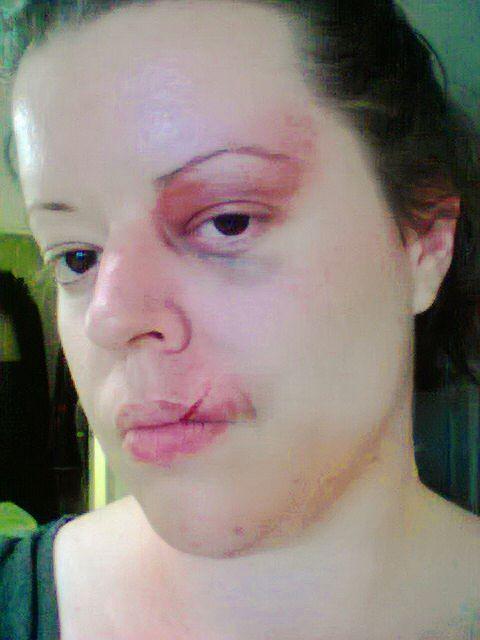 Bruising makeup; using ink and gell
