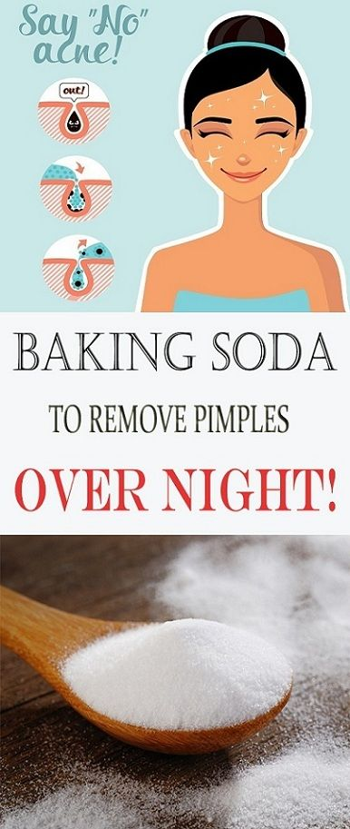 Baking Soda To Remove PIMPLES and ACNE Over Night …