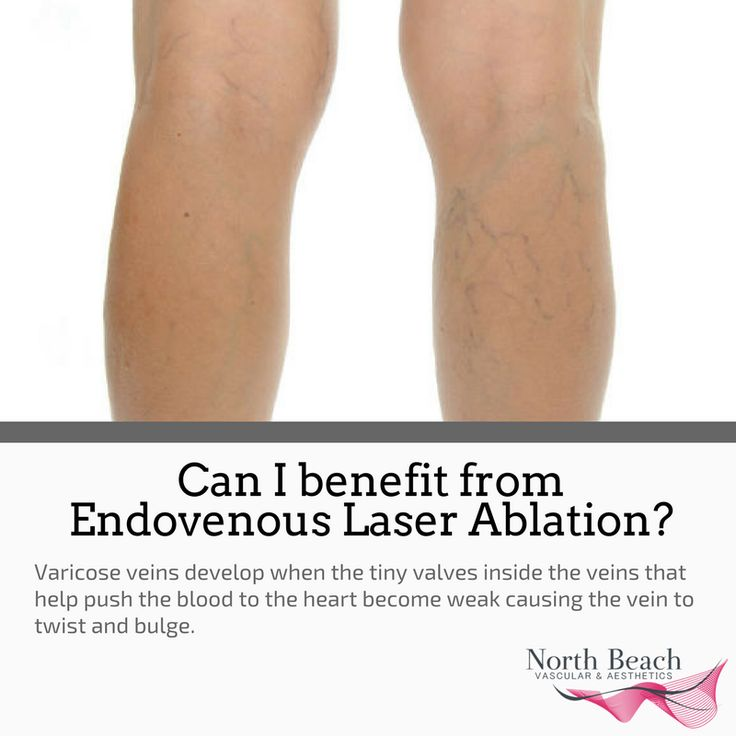 Interested in Endovenous Laser Ablation? It is a minimally invasive, an FDA-approved technique using ultrasound guidance is closed using heat energy. This procedure can be done with a laser or with a radiofrequency (RFA) device in the office. Give us a call today to learn more.