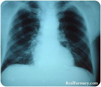 Naturally Cure Pneumonia in 3 Hours and Other Diseases with This One Nutrient