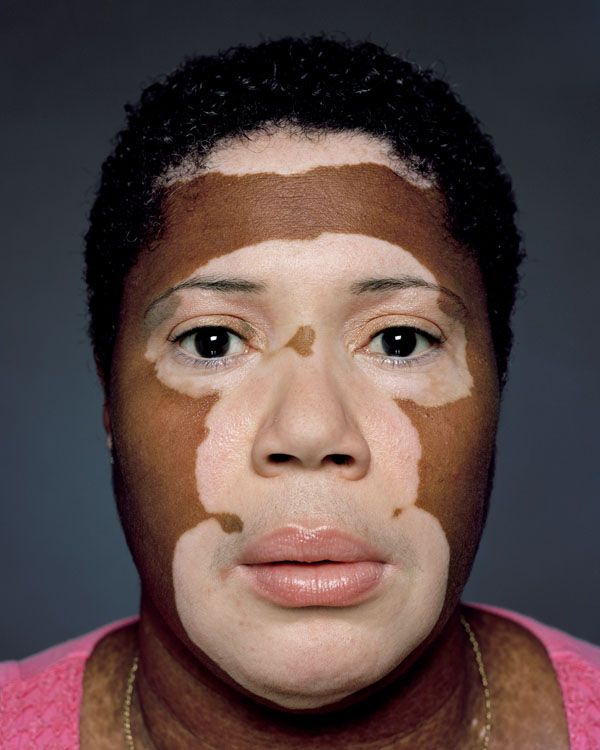 Vitiligo affects millions of Americans. This artist is building a collection of beautiful photographs of this devastating disease #vitiligo