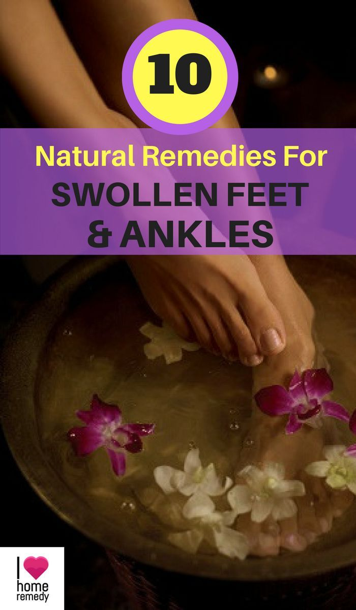 Swelling in your feet and ankle joints is called edema, as well as there are a lot of thingsthat can trigger the problem, from hypertension to pregnancy. Just what's happeninginyour body is having difficultybattling gravitational force to move blood and also fluids back up your legs, so your ankles, feet, or even your legs could begin to swell. Here are top 10 natural remedies for swollen feet & ankles.