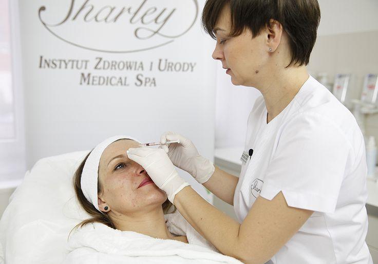 Redukcja zmarszczek poziomych czoła - Botox.