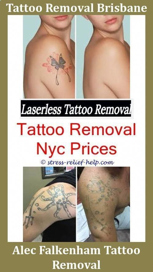 Painless Tattoo Removal Tattoo Removal No Scars,picosecond laser ...