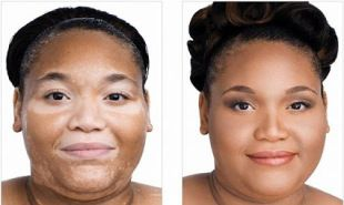 1000 Images About Vitiligo Treatment Before And After On