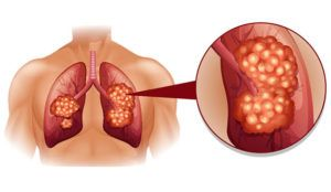 Small Cell Lung Cancer (SCLC), previously known as oat cell carcinoma, is consider distinct from other lung cancers, which are called non–small cell lung cancers (NSCLCs) because of their clinical and biologic characteristics. http://blog.miragesearch.com/small-cell-lung-cancer/