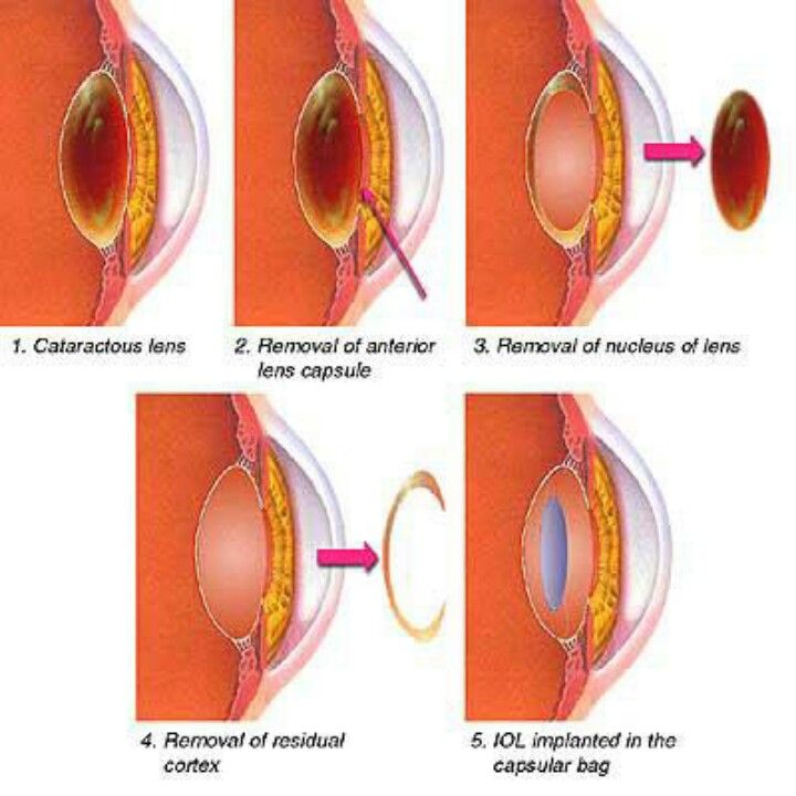 229 best Eyes! images on Pinterest Optometry, Eye and Day care - presumed ocular histoplasmosis