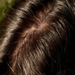 5 Best Home Remedies For Oily Scalp