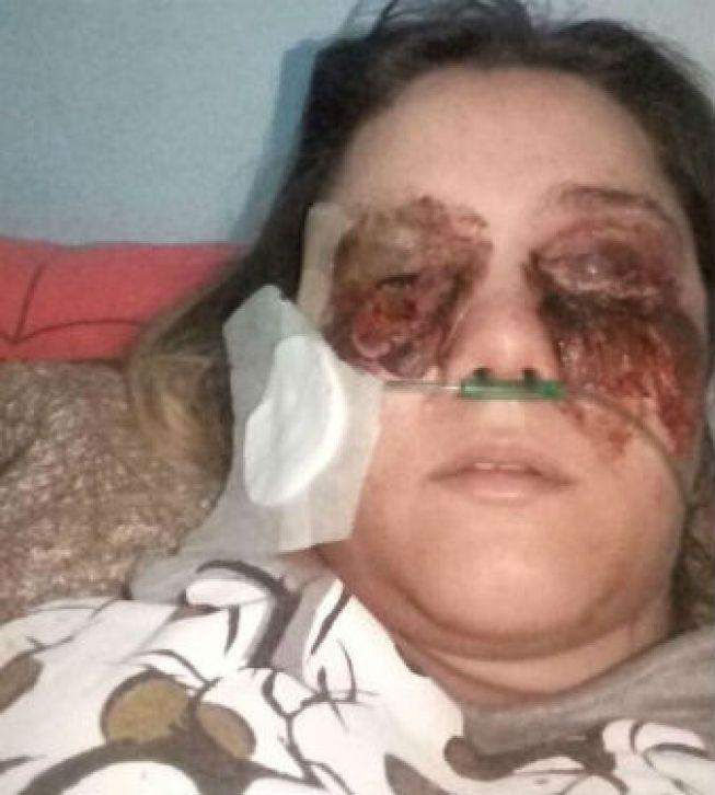 #Mulher finge infecção no olho para conseguir dinheiro com doações para suposta cirurgia - Hoje em Dia: Hoje em Dia Mulher finge infecção…