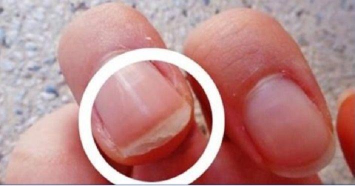 Unhas quebradiças, descamadas ou com manchas brancas são um sinal de alerta.Sabe por quê?As unhas têm a capacidade de revelar se sua alimentação está deficiente ou se há contato em excesso com produtos de limpeza.