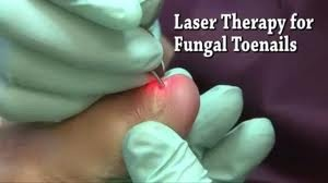 Why choose laser toenail fungus removal over other treatments? Learn why here: http://www.totalfootwellness.com/laser-toenail-fungus-removal.php