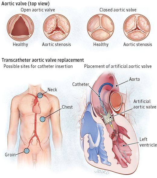 Transcatheter aortic valve replacement (TAVR) is a way to treat aortic stenosis.