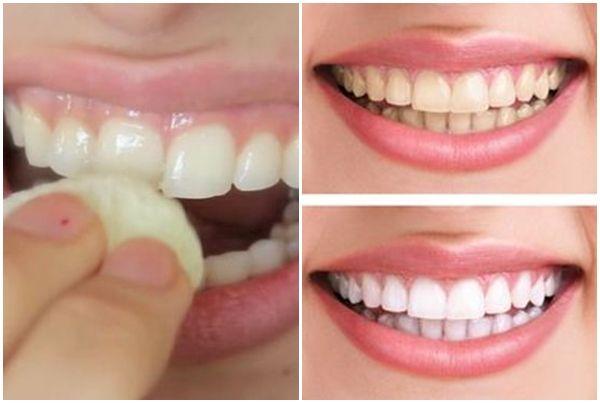 Zseniális fogfehérítési módszer: dörzsöld át vele a fogaid, majd várj 2 percet!