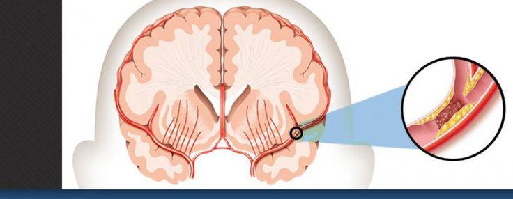 """CLIQUE AQUI! O que é derrame? Derrame é um """"ataque cerebral"""". Pode acontecer a qualquer um a qualquer momento. Ele ocorre quando o fluxo sanguíneo para uma área do cérebro é interrompido http://saudenocorpo.com/o-que-e-derrame/"""