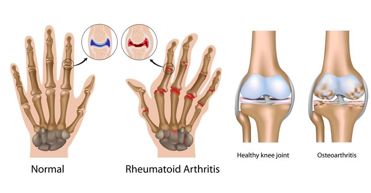 There is no magic cure for rheumatoid arthritis, but studies show a connection between certain foods & inflammation related to this autoimmune condition.