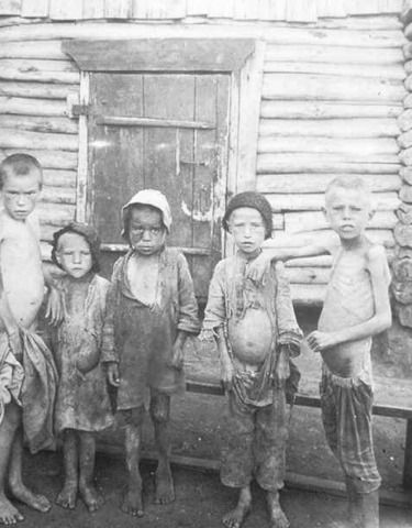 Life in the 20s weren't roaring for the people in poverty.  Government cut back wages causing people already struggling to make money into even more hardships. (In this photograph are children of poverty. They receive lack of nutrients because their parent's can't afford good food.)