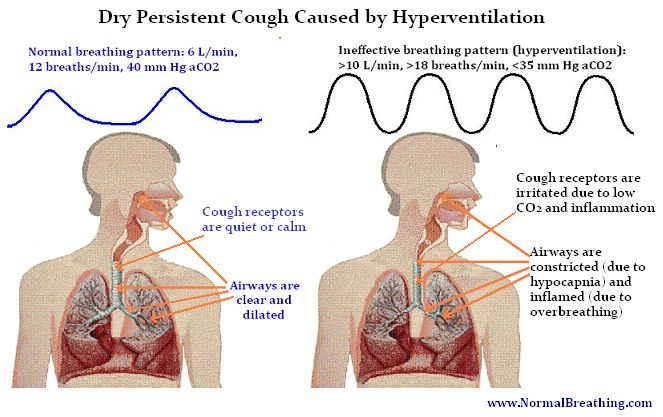 Dry-Cough Causes and Natural Home Remedies for Dry Cough
