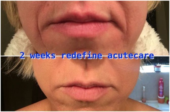 Acne Scar Removal - A General Study on Acne Scar Removal Surgery >>> Continue with the details at the image link. #AcneScarRemoval