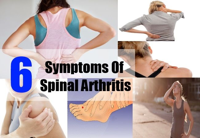 Spinal arthritis, although not as common as rheumatoid arthritis or a gout attack, is equally dangerous and extremely painful. The causative factors for spinal arthritis ...