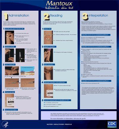 Mantoux Tuberculin Skin Test Wall Chart