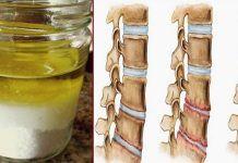 Мощная природная смесь, которая укрепит кости и устранит боли в коленях, спине и суставах! Мои колени перестали болеть уже после трёх применений!