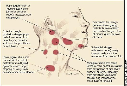 Lymph nodes of the face and neck - what causes swollen lymph nodes under the collar bone