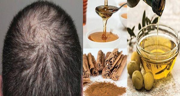 Řekněte sbohem plešatosti: Tento recept zaručí rychlejší růst vlasů a podpoří jejich pevnost