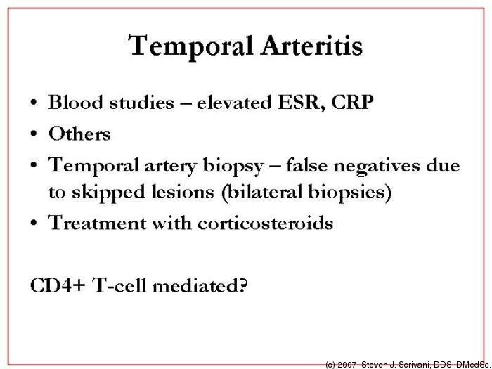 Temporal Arteritis Natural Remedies