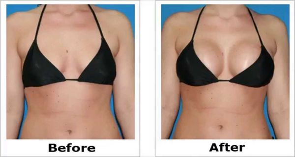 Enlarge The Breasts In A Short Period With This Simple Recipe