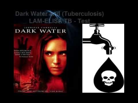 Elisa Lam Mystery Solved!!! TB Outbreak Lam Elisa Test - Hollywood Illum...