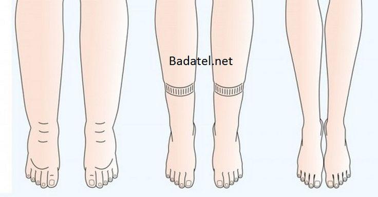 Trápia vás opuchnuté nohy či ruky? Zrejme sa vám v nich hromadí voda. Tu je 6 zaručených spôsobov, ako z tela vyplavíte prebytočnú tekutinu.