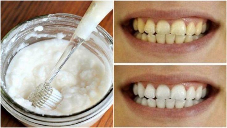 domáca zubná pasta