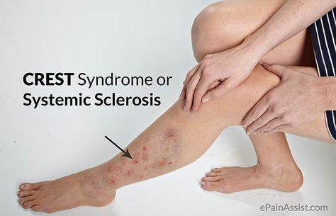 CREST Syndrome or Systemic Sclerosis Read: http://www.epainassist.com/skin/crest-syndrome-or-systemic-sclerosis