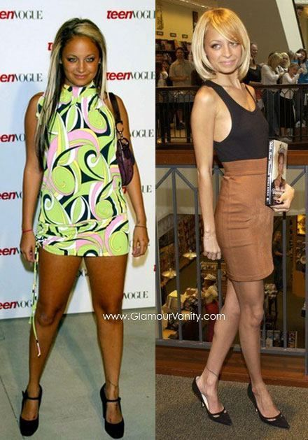 Nicole Richie Weight Loss - WOULD YOU LIKE TO KNOW THE # 1 THING YOU NEED, TO FINALLY LOSE WEIGHT FAST AND KEEP IT OFF? GO TO THIS LINK to LEARN HOW... http://www.getyouhealth.tsfl.com/explore