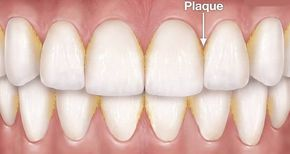"""From a medical point, the dental plaque is a mass of bacteria (biofilm) that grows on surfaces within the mouth. In most cases it appears as a white or pale yellow """"slime layer"""" and is found between theteeth and along the cervical margins. Read this article and find out how to remove dental plaque with only one ingredient! According to experts, plaque begins forming immediately after a tooth surface is cleaned. On average it takes about 4 to 9 days (mostly in 7 days) for plaque to become…"""