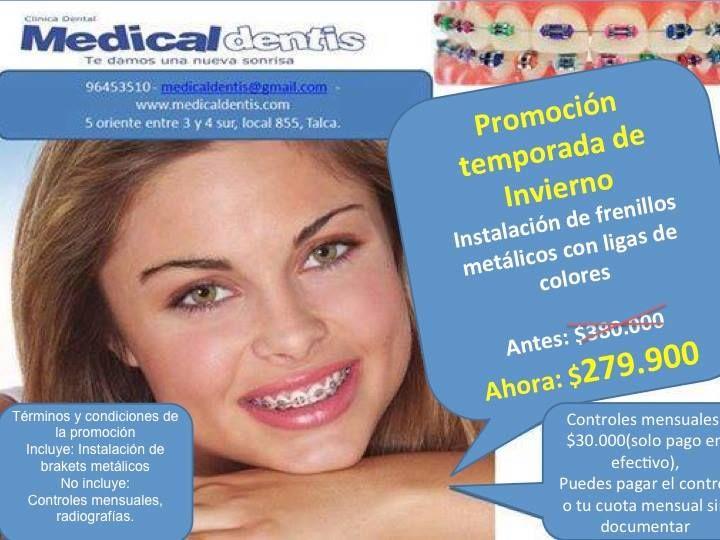 Promoción Invierno frenillos metalicos a $279.990 - Clínica Dental Medicaldentis - 96453510 - medicaldentis@gmail.com - www.medicaldentis.com - 5 oriente 855 entre 3 y 4 sur, Talca.