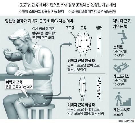 ▲ 당뇨병 환자는 허벅지 근육부터 키워야 한다. 허벅지 근육이 많으면 혈당이 쉽게 높아지지 않고, 혈당을 조절하는 인슐린의 기능도 좋아지기 때문..