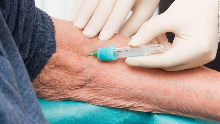 Alzheimer's: Will experimental blood test be a game-changer? - CNN