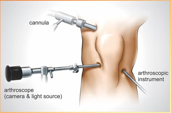 Arthroscopy – An In-Depth Overview