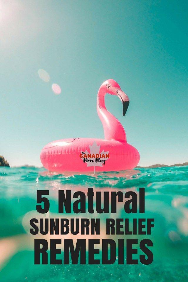 5 Natural Sunburn Relief Remedies - Canadian Mom Blog