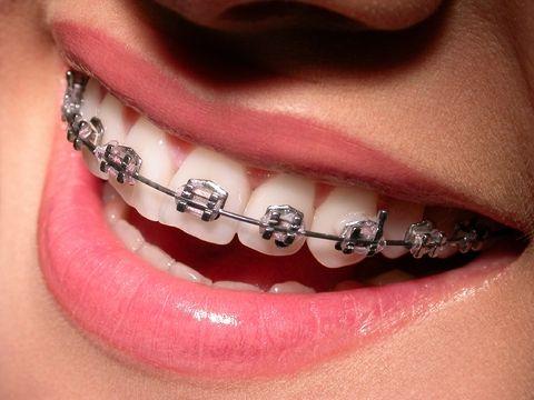 Appareil dentaire : Ce qu'il faut retenir http://univers-dentaire.net/appareil-dentaire/