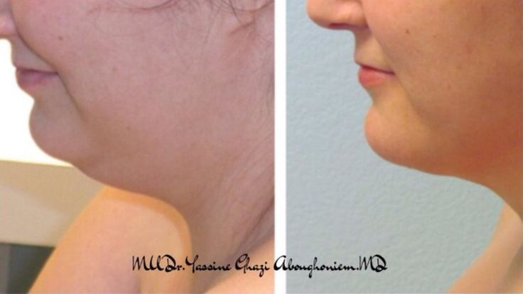 Neck Lipoplasty