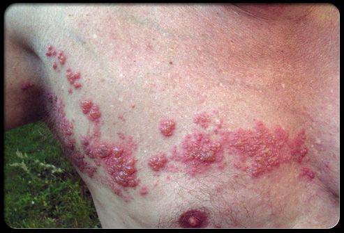 Herpes urethritis A man in his 40's attended clinic for the first time complaining of intense dysuria and pain at the tip of