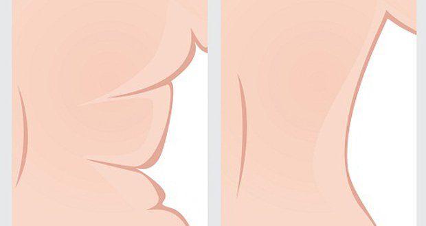 Découvrez dans cet article des exercices pour se débarrasser de la graisse du dos.